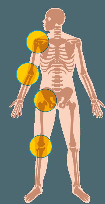 acido urico en rodilla tengo acido urico y colesterol que alimentos consumir para el acido urico