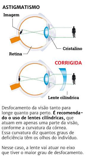af9e8348369ec Tag  Tipos De Lentes Para Oculos De Grau